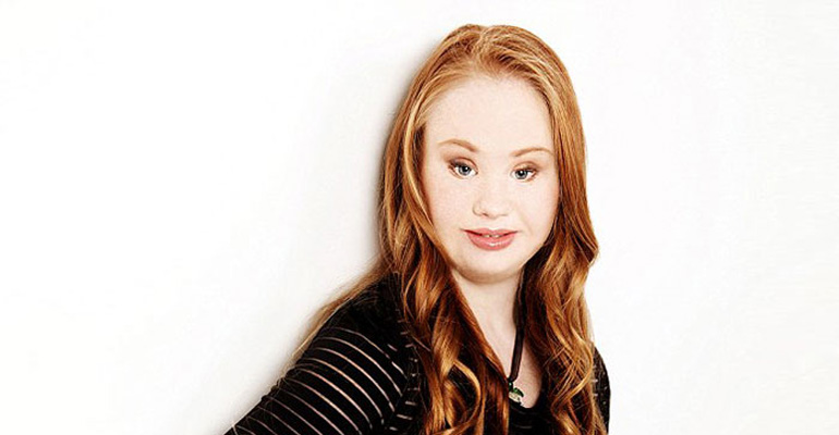 Teen With Down Syndrome Wants to Be a Model and Is Letting Nothing Stand in Her Way