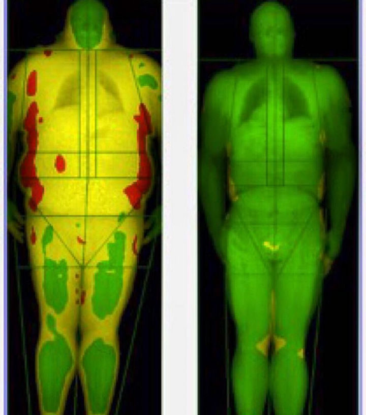 Pasquale Brocco took an IDXA body scan before and after losing the weight and the results are dramatic. The yellow areas represent body fat and red areas represent dangerous levels of body fat.