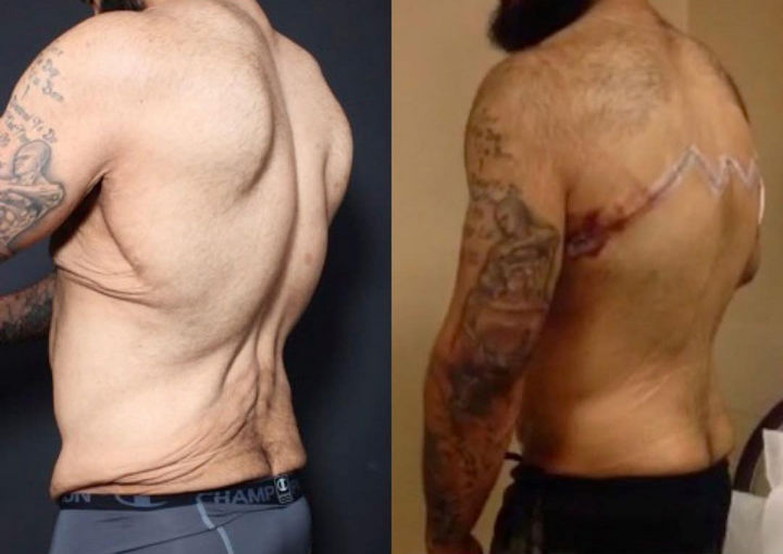 He had nearly 30 pounds of excess skin removed, he looks forward to looking and feeling great with his new physique he worked so hard to achieve.