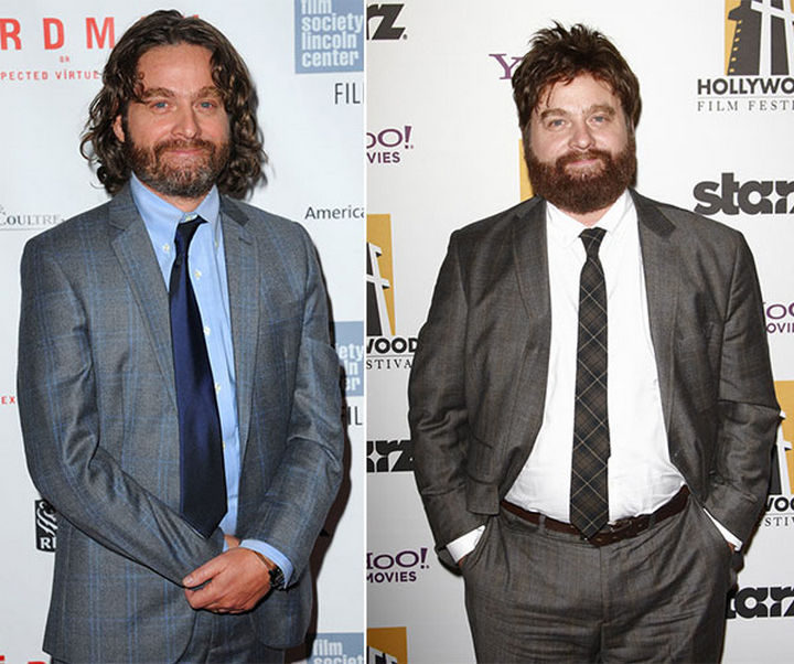 Before and After Weight Loss Photos of People Who Quit Drinking - Even actors like Zach Galifianakis have transformed themselves by quitting alcohol.