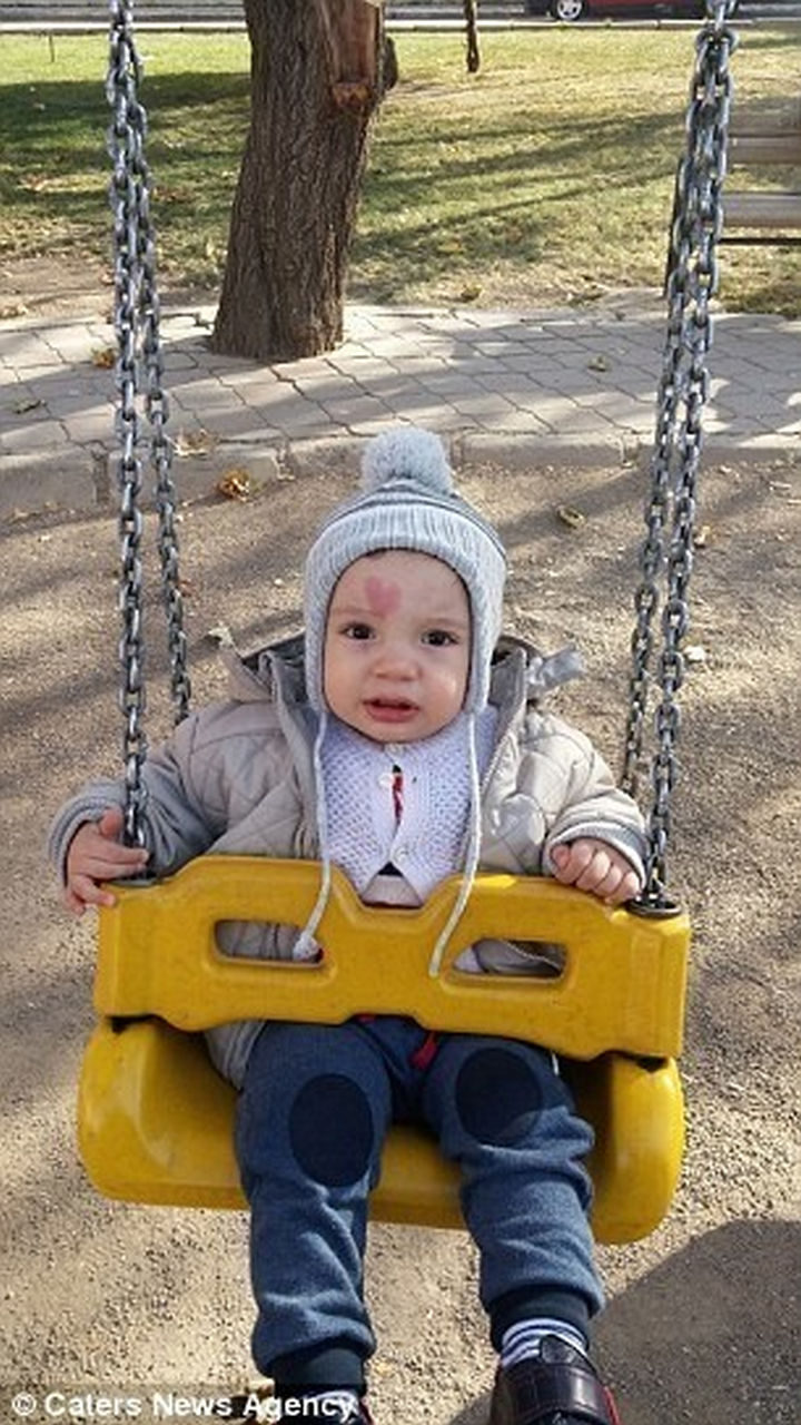 Many have described baby Çinar as the 'Love Baby' because of his unusual but beautiful birthmark.