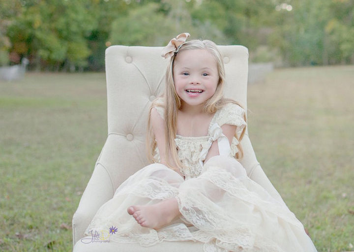 Willson's sister Dina had Down syndrome and she felt blessed growing up with a sister with Down syndrome.