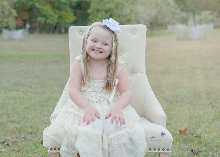Down syndrome is a genetic disorder caused by the presence of an extra chromosome.