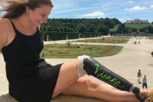 Woman Buys Chalkboard Leg and Takes a Trip to Europe.