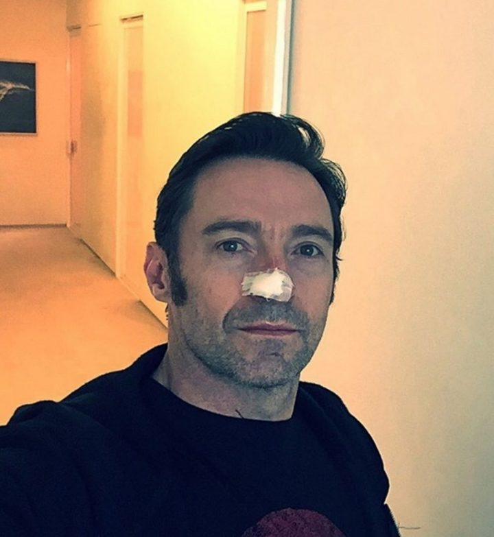 Hugh Jackman winning his 6th battle with cancer in 2017. He has been treated five times for carcinomas on his nose and once on his shoulder.