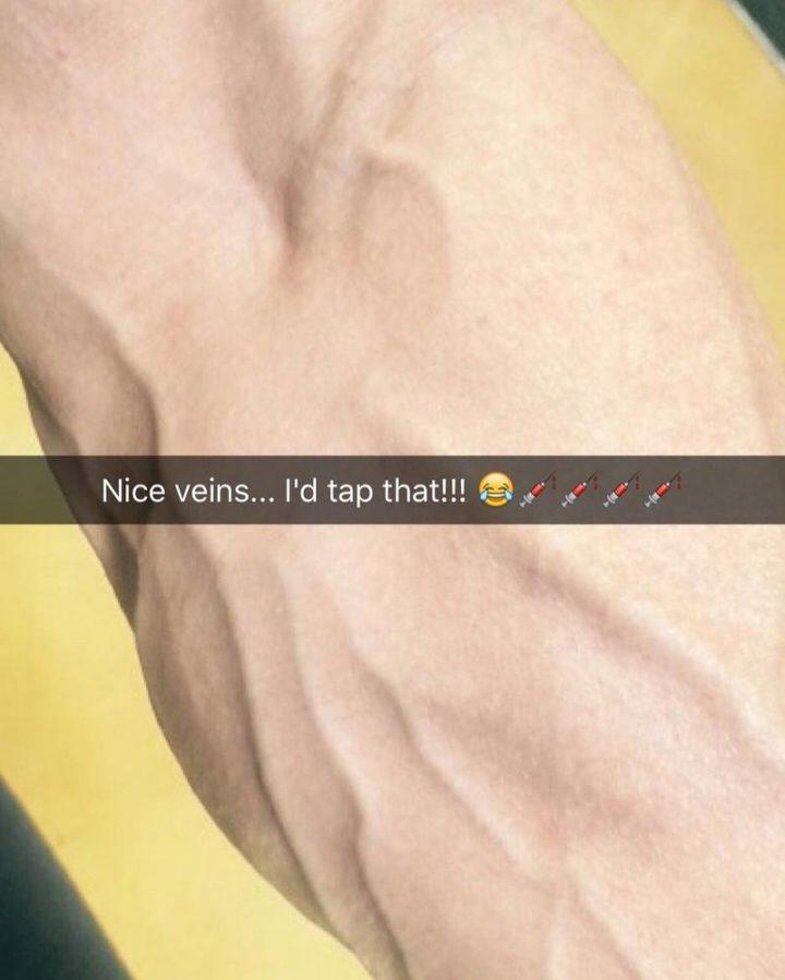 "101 Funny Nursing Memes - ""Nice veins...I'd tap that!!!"""