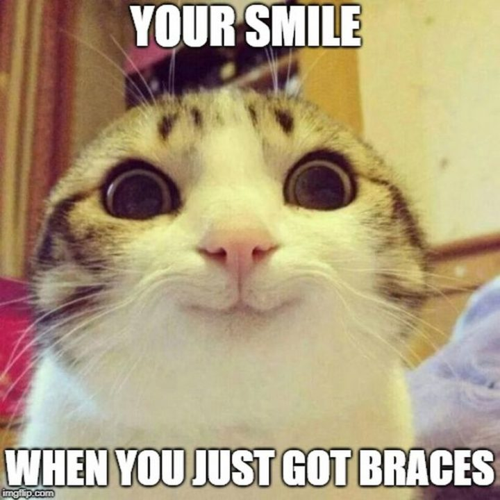 """101 Smile Memes - """"Your smile when you just got braces."""""""